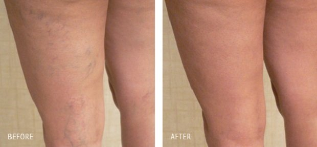 До и после лечения варикоза