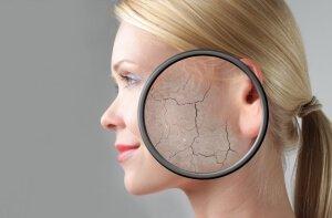 Сухость и старение кожи лица