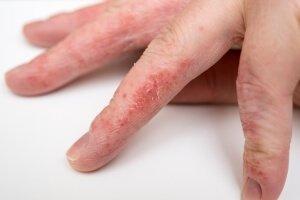 Шелушения на пальцах кожи рук