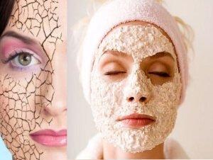 Сухая кожа у женщин в возрасте