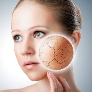 Проблемная сухая кожа лица и тела