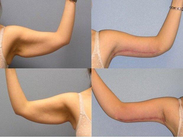 Упражнения которые убирают обвисшую кожу на руках