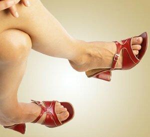 Сосудистые звездочки у женщин