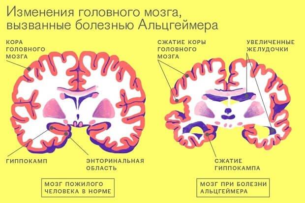 изменения мозга