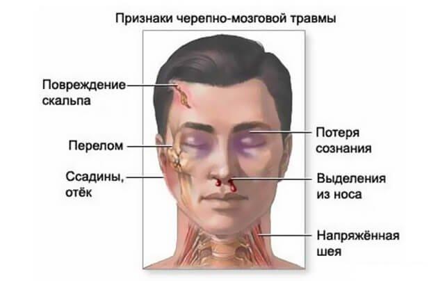 признаки черепно мозговой травмы