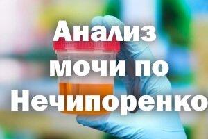 Анализом мочи по Нечипоренко