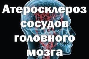 Кровоснабжение головы