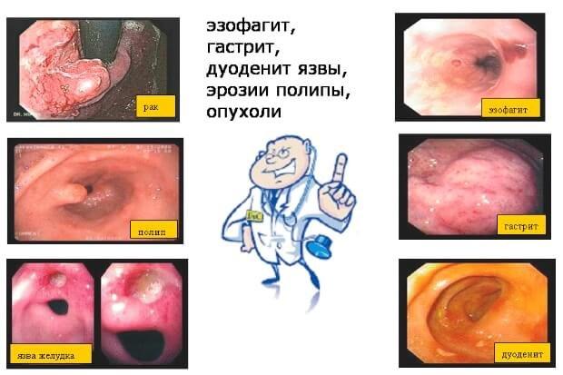 Результаты ФГДС желудка