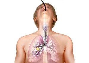 Бронхоскопия дыхательной системы