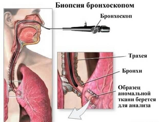 Биопсия при бронхоскопии легких