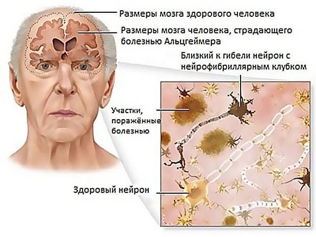 Деменция и проявление