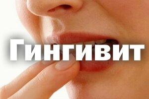 Гингивит, симптомы и лечение у взрослых