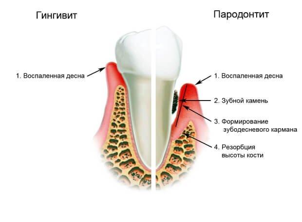 Воспаление десен при гингивите