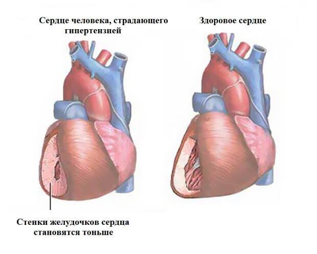 Сравнение сердца больного и здорового человека