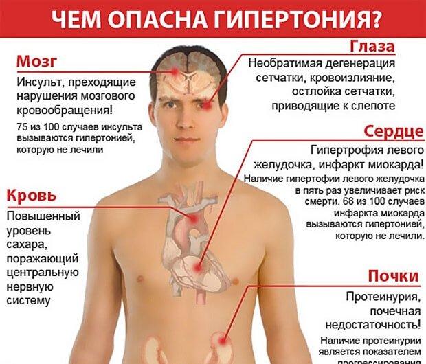 риски заболевания