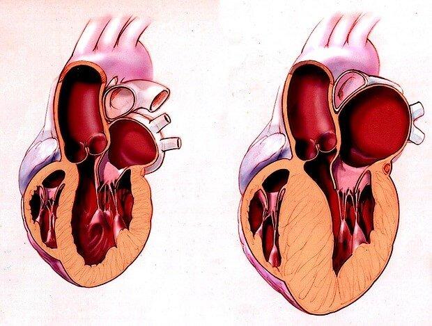 утолщение стенок сердца