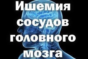 Ишемия сосудов головного мозга