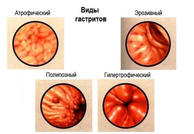 Виды гастритов желудка