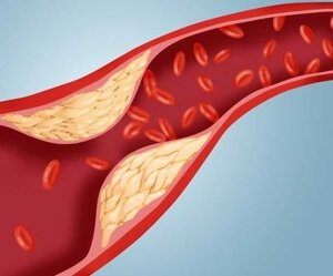 Артерии и холестерин