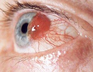 Хориоидеи глаза