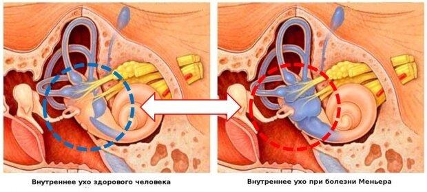Сравнение ушных раковин здорового уха и при болезни Меньера