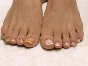 Микоз ногтевой пластины