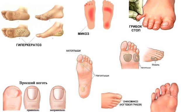 Виды микоза ногтей