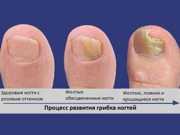 Поражение ногтевой пластины грибком