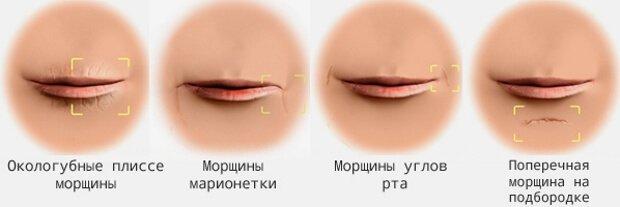 Виды морщин вокруг губ у женщин