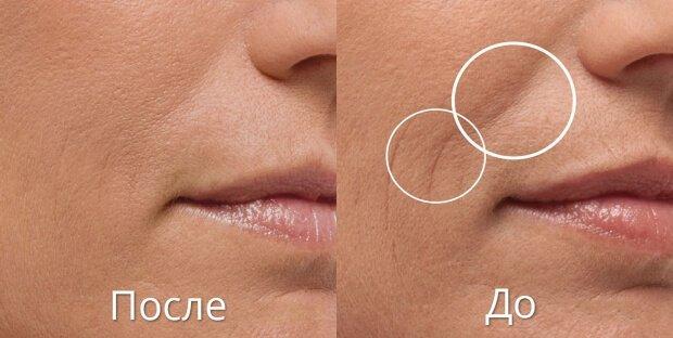Результат после лазерной шлифовки лица