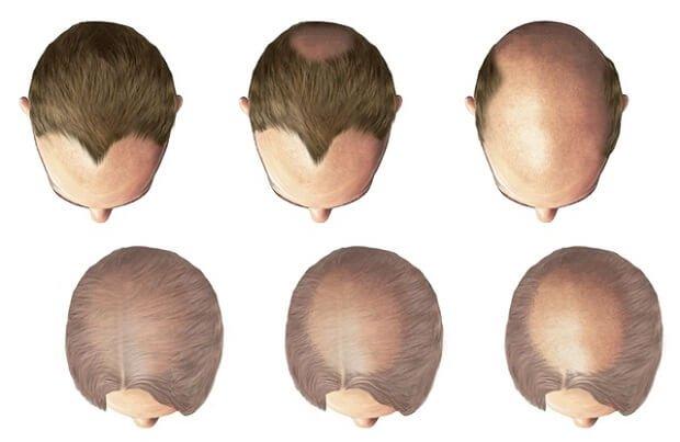 Почему лысеют мужчины причины и лечение
