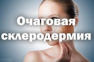 Очаговая склеродермия
