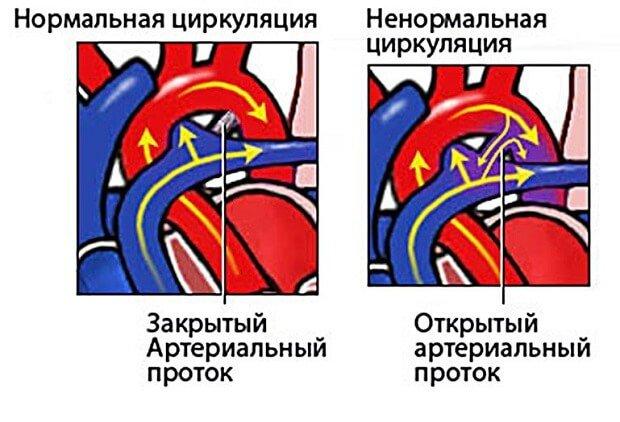 сравнение нормального и открытого потока