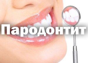Пародонтит - симптомы, лечение, причины