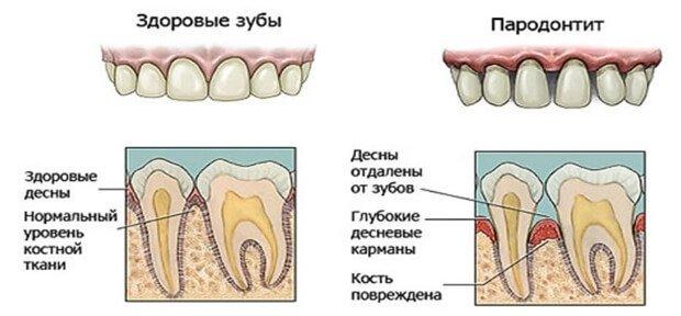 Сравнение здоровых зубов и пародонт