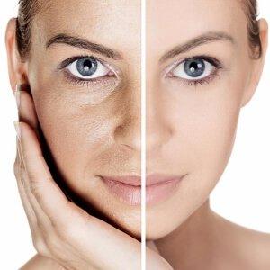 Пористая кожа лица