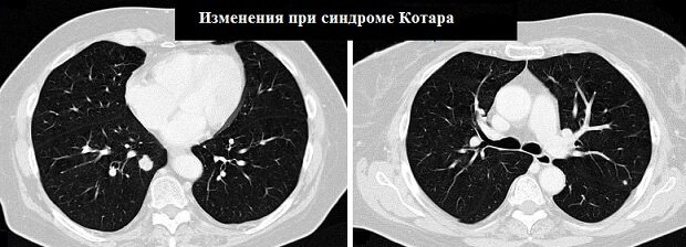 Изменения на МРТ