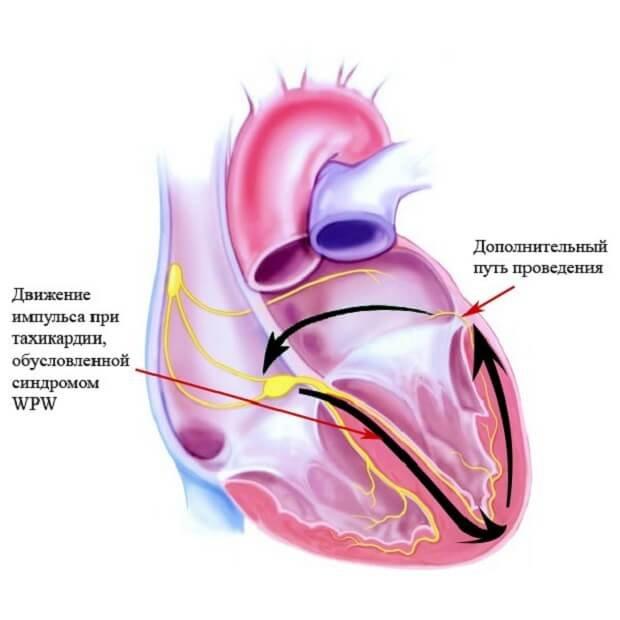 Сердце во время тахикардии