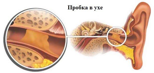 ухо заложено после простуды отзывы
