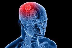 проблемы с мозгом