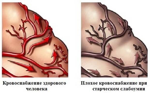 кровоснабжение при деменции