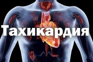 Тахикардия - симптомы и лечение в домашних условиях, причины