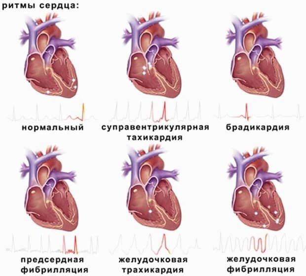 Сердечные ритмы
