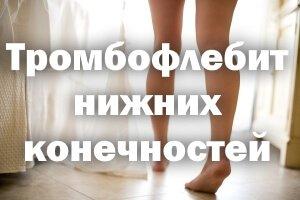Тромбофлебит глубоких вен нижних конечностей, симптомы, лечение