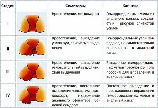 Четыре стадии