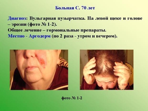 Клинический случай