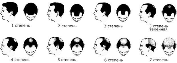 степени выпадения волос