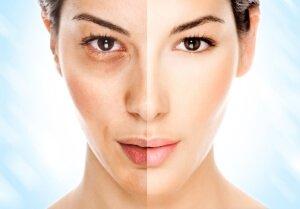 Неровности на коже лица