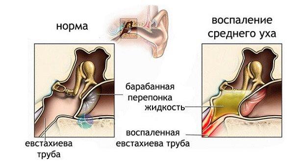 Воспаленная евстахиева труба