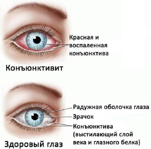 желтая ртутная мазь для глаз купить украина